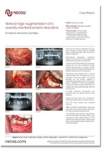 Case-Report-Vertical-ridge-augmentation-of-a-severely-resorbed-mandible-210x300.jpg?mtime=20181004101451#asset:7874